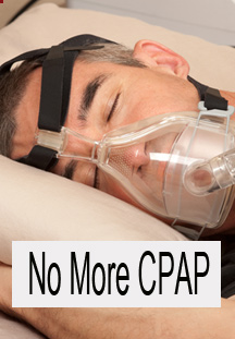 bay Area Sleep Apnea No More CPAP