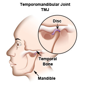 Bay Area, San Jose, Palo Alto, Aptos TMJ TMD Relief